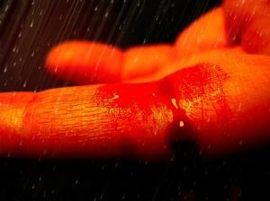 1024px-Bleeding_finger